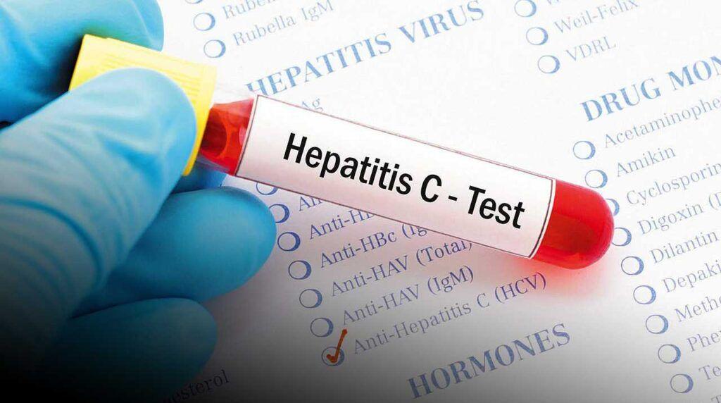 Почему невозможно полностью обезопасить себя от гепатита С